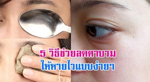 5 วิธีช่วยลดอาการตาบวม จากการร้องไห้แบบเร่งด่วน !!!
