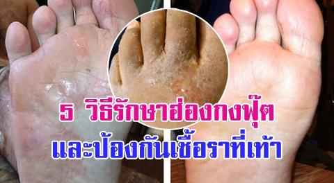 5 วิธีรักษา ''โรคน้ำกัดเท้า-ฮ่องกงฟุ๊ต'' สาเหตุหลักของการเกิดเชื้อราเรื้อรัง !!!
