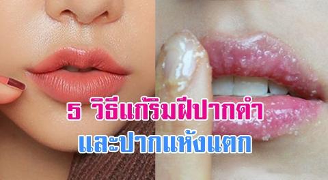5 วิธีช่วยแก้ปัญหา ริมฝีปากแห้ง แตก ดำคล้ำ !!!