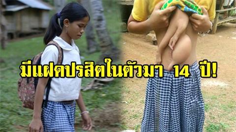 หลังทุกข์ทรมานมา 14 ปี เด็กหญิงที่มีแฝดปรสิตงอกออกมาใกล้ได้ผ่าแล้ว!!