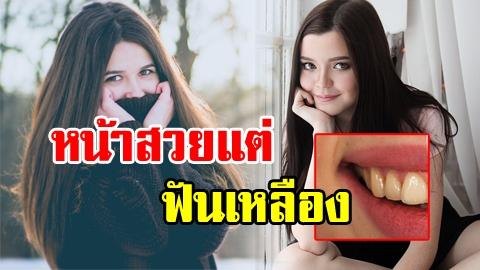 บอกลาฟันเหลือง! 4 กิจวัตรประจำวัน ทำให้ฟันเหลืองไม่รู้ตัว