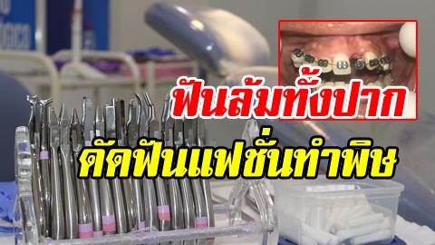 ใจไม่ถึงอย่าดู! ดัดฟันแฟชั่นทำพิษ เสียโฉม ฟันล้มทั้งปาก