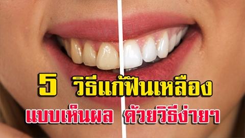อยากยิ้มสวย!! 5 วิธีแก้ฟันเหลือง แบบเห็นผล ให้กลับมาขาวสะอาด ด้วยวิธีง่ายๆ!!