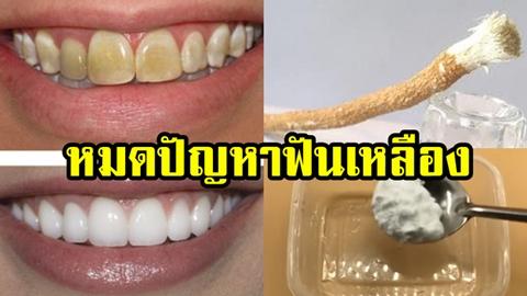 รู้แบบนี้ทำนานแล้ว!!แค่ 3 นาที วิธีทำให้ฟันขาวขึ้น ด้วยของใช้ใกล้ตัว
