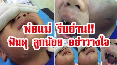 พ่อแม่ รีบอ่าน!! ฟันผุ ลูกน้อย อย่าวางใจ ทันตแพทย์ชี้อาจอันตรายกว่าที่คิด!!