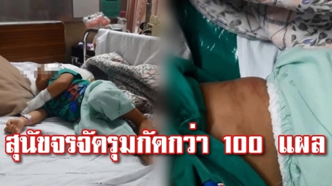 เด็กหญิงวัยขวบเศษเดินเล่นหน้าบ้านถูกฝูงสุนัขจรจัดรุมกัดกว่า 100 แผล โชคดีชาวบ้านเข้าช่วยทัน