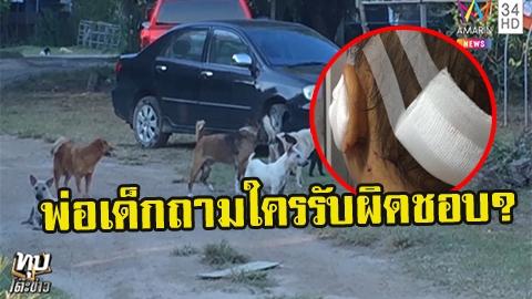 หมาจรจัดรุมขย้ำเด็ก 117 แผล พ่อเด็กถามใครรับผิดชอบ คนให้ข้าวหมาชี้ ต้องช่วยกันแก้ไข ไม่ใช่กำจัดทิ้ง!!
