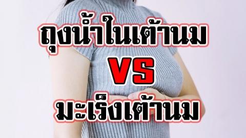 โรคถุงน้ำในเต้านม สาเหตุ เกิดจากอะไร แตกต่างจากมะเร็งเต้านมอย่างไร