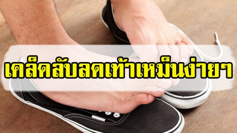 ดูแลสุขภาพเท้าไม่ดีพอ อาจเป็นบ่อเกิดของอาการเท้าเหม็น