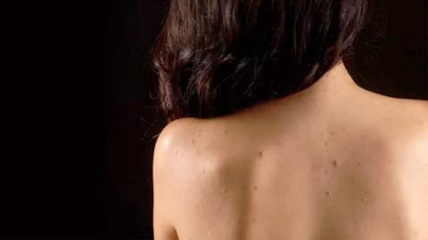สิวขึ้นตามร่างกาย มาดูเคล็ดลับรักษาสิวง่ายๆ ที่คุณอาจมองข้าม!
