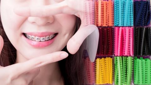 ทริคเลือกสียางดัดฟันให้เข้ากับตนเอง พร้อมอัพเดตสียางดัดฟัน 2020