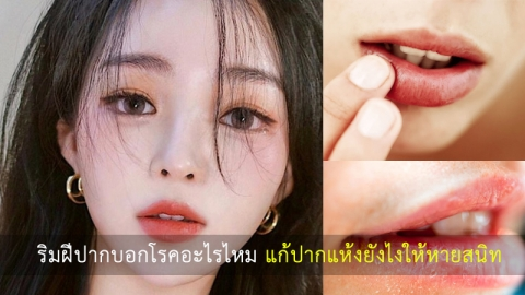 ริมฝีปากที่ไม่ชุ่มชื้นบอกโรคได้ไหม ควรทำยังไงดีเมื่อปากแห้งแตก