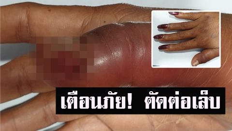 อุทาหรณ์!! สาวต่อเล็บ ติดเชื้อลามไปกระดูก เสี่ยงติดเชื้อเอชไอวี